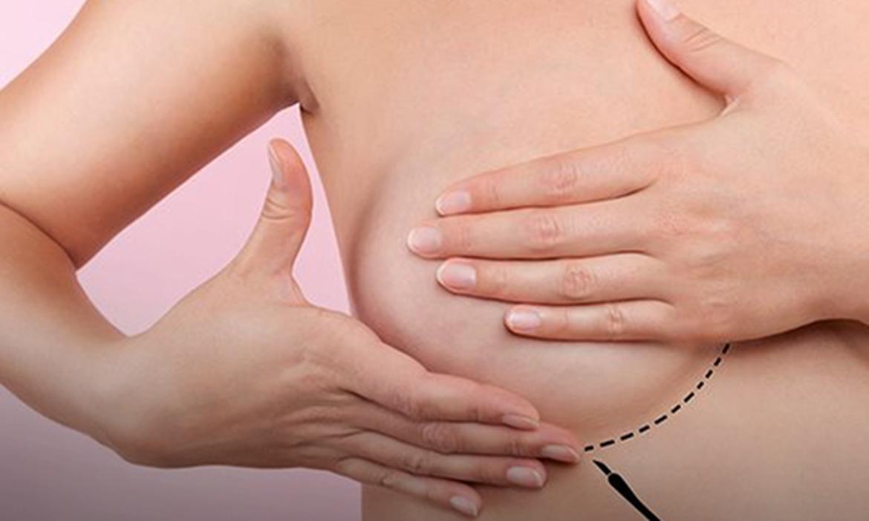 You are currently viewing Tratamento pode fazer câncer de mama regredir seis vezes mais rápido